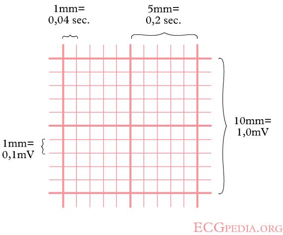 ECG_square